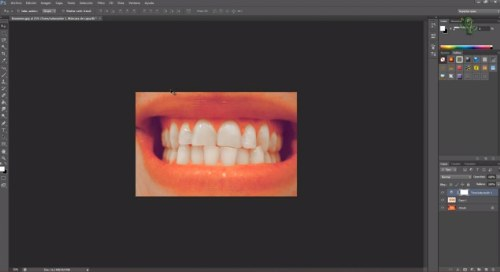 tutorial dientes